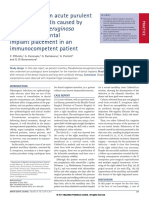 First Report of an Acute Purulent Maxillary Sinusitis Caused by Pseudomonas Aeruginosa Secondary to Dental Implant Placement in an Immunocompetent Patient