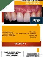 Radiologia de La Enfermedad Periodontal