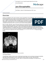 Imaging in Herpes Encephalitis_ Overview, Computed Tomography,