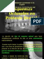 TEMA_5._Esquemas_Oclusales._protesis