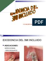 Exodoncia Del 3mi Incluido