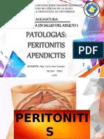 Peritonitis Apendicitis