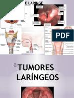 tumoreslarngeos-150529174640-lva1-app6891.pptx