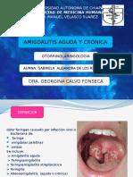 Amigdalitis Aguda y Cronica