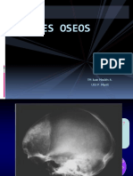 90238066-16-TUMORES-OSEOS