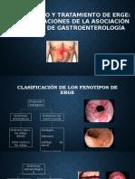 Diagnóstico y Tratamiento de ERGE