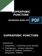 Suprapubic Puncture