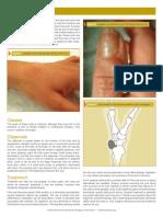 GanglionCysts.pdf