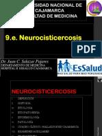 9 Infecc Parasitaria Neurocisticercosis