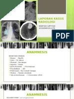 laporan Kasus Radiologi (foto lumbo-sacral)