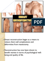 breast reconstruction.pdf
