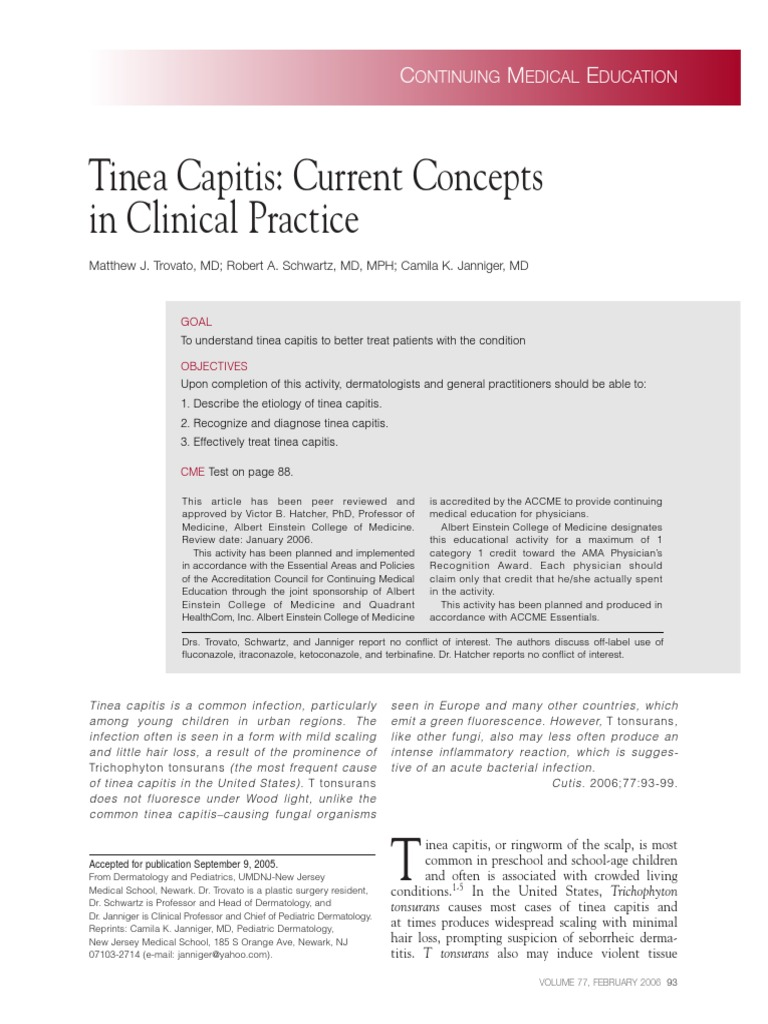 Tinea Capitis | Hair Loss | Clinical Medicine