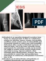 Arthrodesis Visualbee2 140217084354 Phpapp02