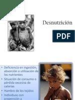 Desnutrición (1)