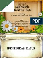 Carcinoma Tiroid