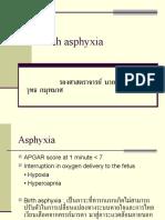 Birth Asphyxia
