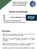 10. Artritis Idiopática Juvenil
