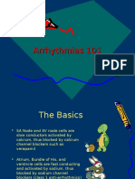 Arrhythmias