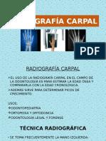 RADIOGRAFÍA CARPAL.pptx