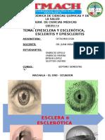 Escleritis