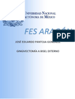 Gingivectomía a bisel externo.pdf