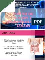 Tumor y Diverticulo de Colon