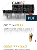 caries-161001154920