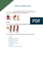 Resumen Infarto de Miocardio