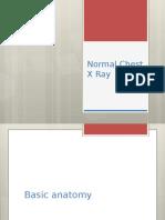 Radiologi Toraks Normal