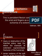 Volkman's Ischemic Contracture