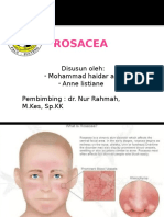 Ppt Rosacea