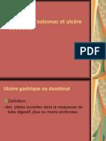 15 Ulcre Gastro-duodenal