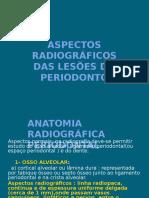 Aspecto Radiográfico Das Lesões Do Periodonto