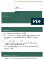 cholangiocarcinoma case study