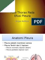 Efusi Pleura