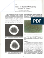 Diagnosis of Space Occupying Lesions of Brain