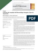 Lesiones Del Complejo Del Fibrocartílago Triangular.