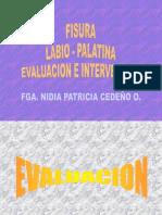 Fisuralabiopalatinaint.ex (Leido)