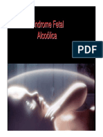 6. Sindrome Fetal Alcoolica