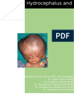 Hydrocephalus and Homoeopathy
