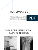 Shoulder, calcaneus, ankle, knee, colum femur, pelvis frogleg.ppt