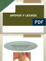 Apoyos y Lechos Ppr