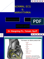 ECG Arrhythmia2