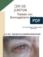 CÁNCER DE CONJUNTIVA TRATADO CON BIOMAGNETISMO MÈDICO