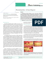 acute necrotizing periodontitis