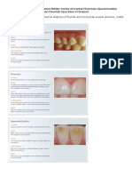 Differential Diagnosis between Milder Forms of Dental Fluorosis (Questionable, Very Mild, And Mild) and Non Fluoride Opacities of Enamel