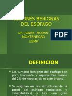 Medicina III - Trasntornos Motores Del Esófago y Neoplasia Benigna
