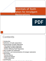Tooth Preparation for Amalgam