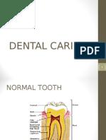 dental caries.ppt