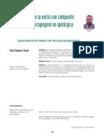 Imitación de la encía con composite..pdf